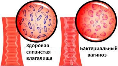 Что это такое гарднерелла, симптомы, лечение и фото