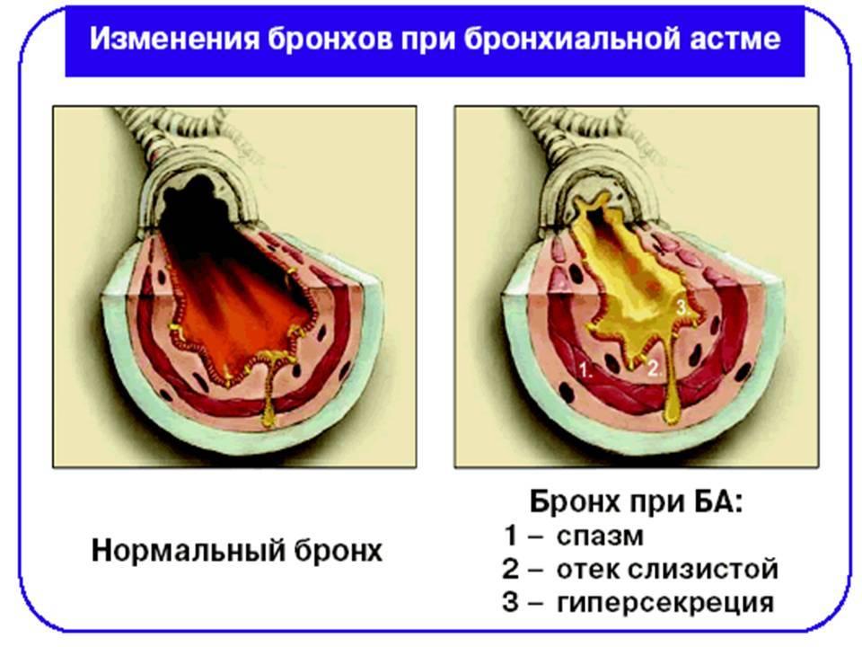 Применение народных средств для лечения уретрита