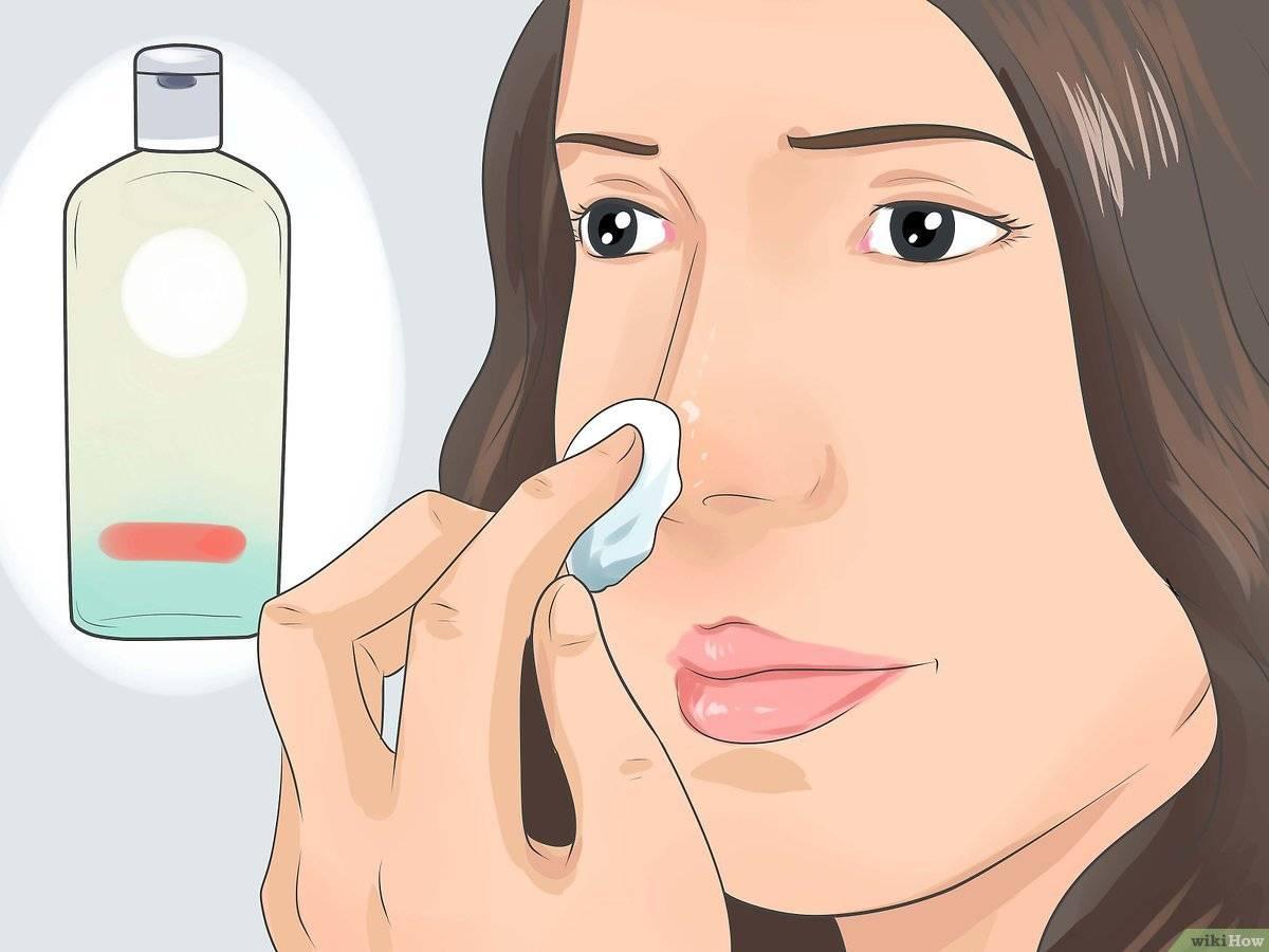 Как правильно пользоваться петлей видаля для чистки лица и пор