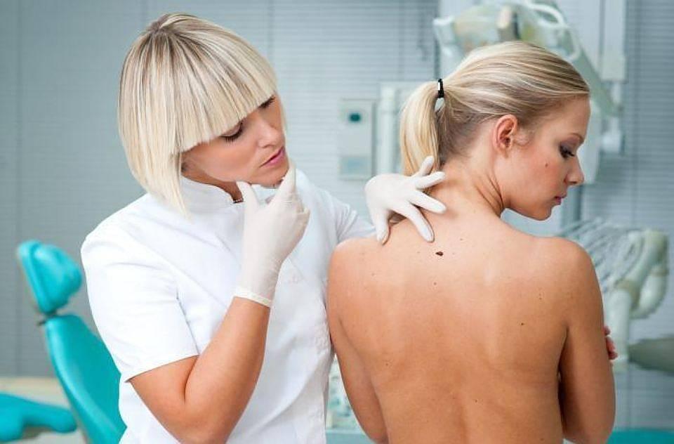Удаление папиллом и бородавок: методы лечения и уход за раной