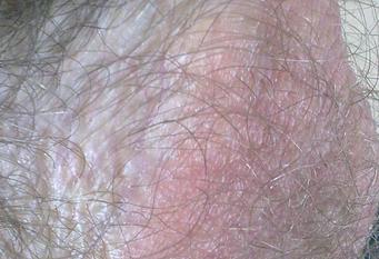 Почему шелушится кожа на мошонке и чешется кожа