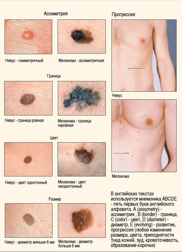 Удаление меланомы: методы, противопоказания и осложнения