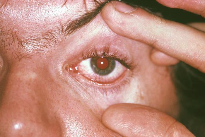 Фарингит - симптомы