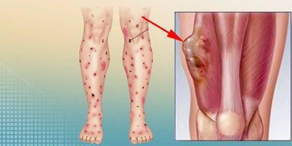 Меланома метастазы в кости прогноз
