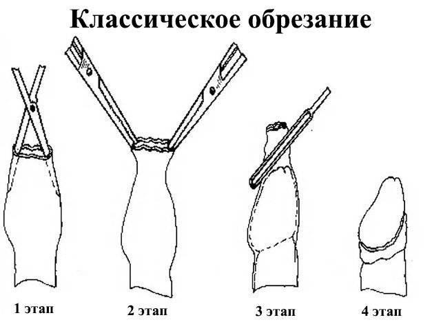 Обрезание крайней плоти у мужчин:до и после операции