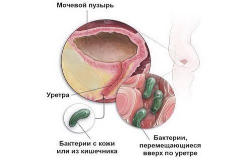 Заболевания мочеполовой системы у мужчин – разнообразие и опасность