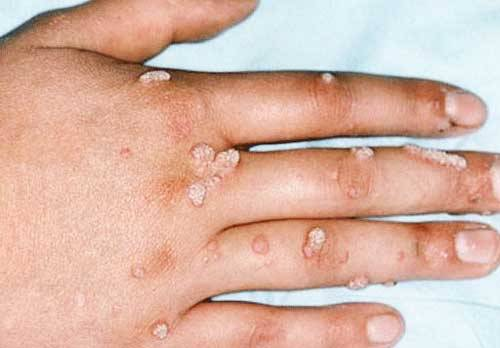 Особенности лечения вируса папилломы человека у женщин