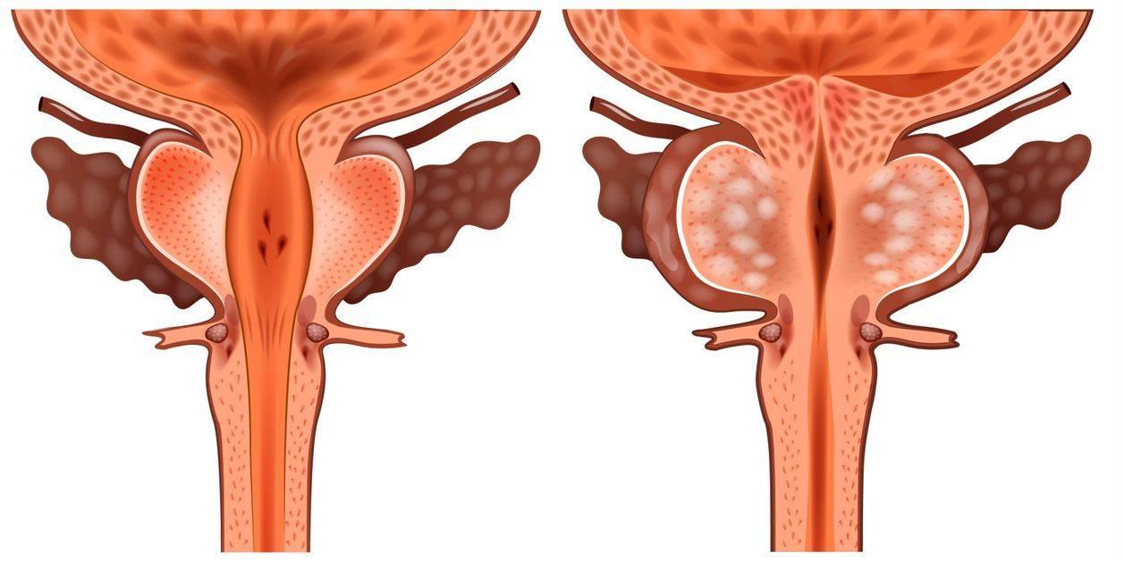 Где в мужском организме находится предстательная железа: анатомические фото и видео