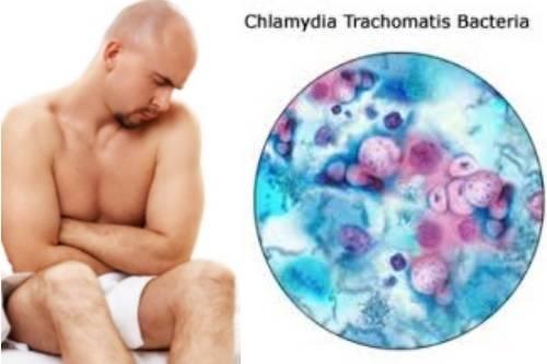 Как сдавать анализ на хламидии у женщин: обзор методов диагностики