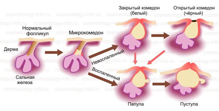 Польза масок из спермы для лица и как их правильно делать