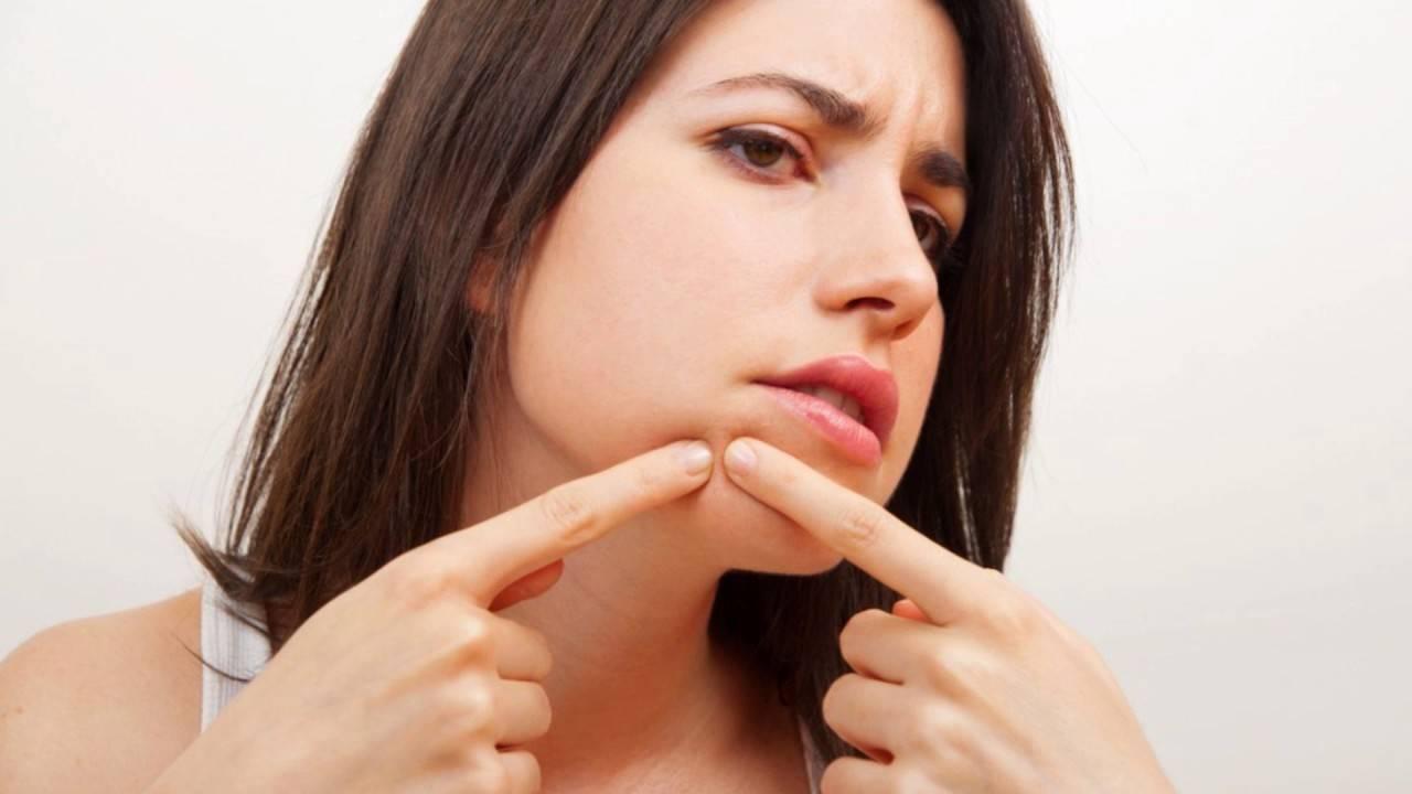 Прыщи на подбородке у женщин — причины и способы лечения