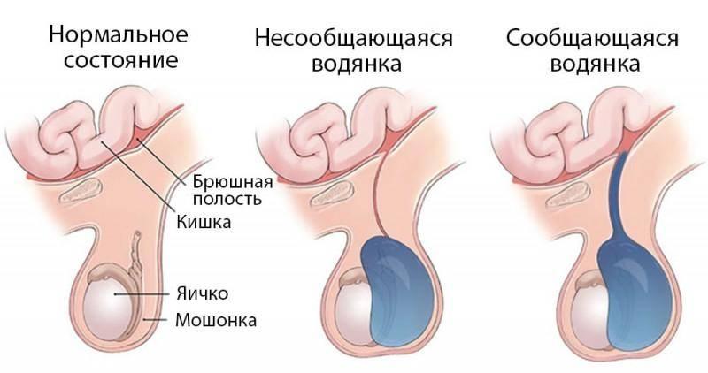 Перекрут гидатиды яичка: что это такое, диагностика заболевания, лечение. причины возникновения и лечение гидатиды яичника