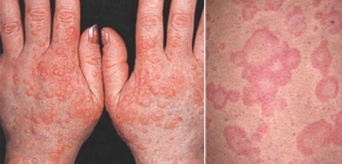 Дерматит на руках — фото, лечение, причины и симптомы заболевания
