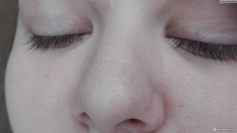 Распаривание кожи лица перед чисткой черных точек - методы расширения пор