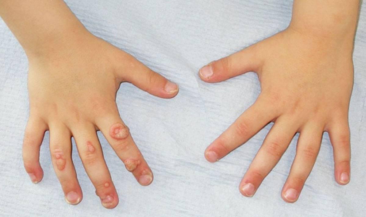 Как вылечить папиллом на руках и пальцах?