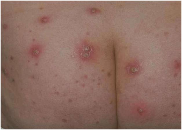 Фурункулез у детей — причины, лечение, симптомы