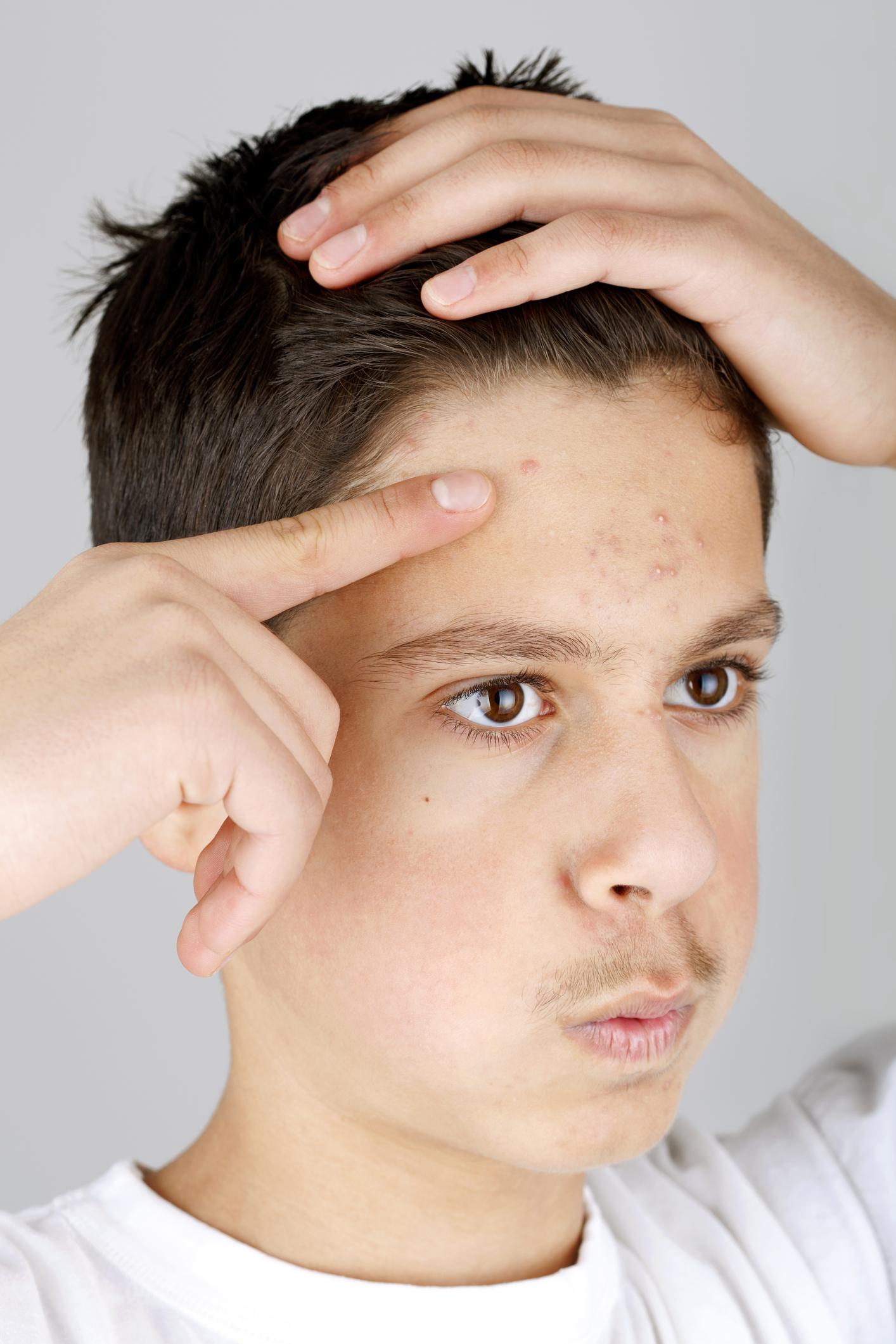 Как избавиться от высыпаний на коже лица?