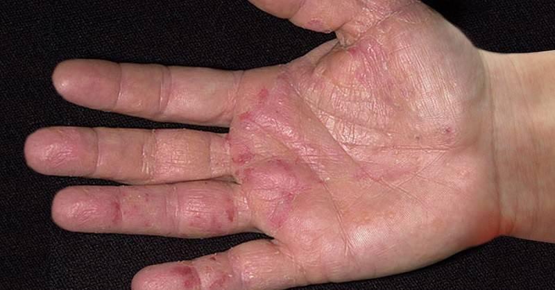 Дерматит на руках причины и лечение