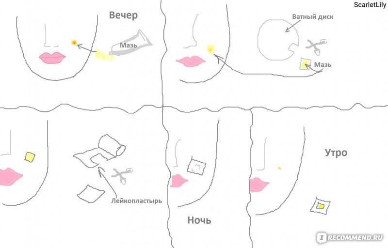 Диета от прыщей: плюсы и минусы