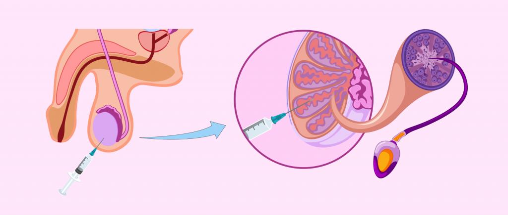 Биопсия яичка у мужчин