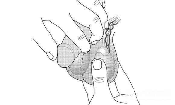 Причины и лечение боли в яичках после секса у мужчин