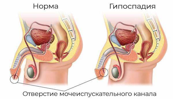 Рези при мочеиспускании у мужчин: причины возникновения и лечение