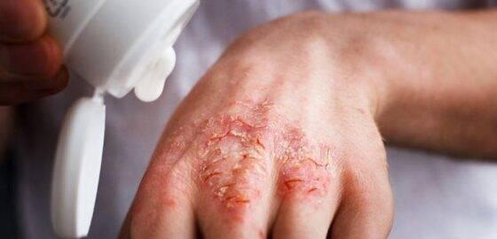 Водянистые прыщи на лице: причины и лечение