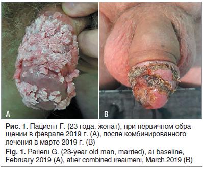 Как выглядят кондиломы у мужчин? симптомы и лечение неприятного заболевания