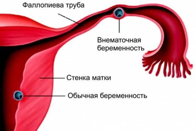 Коричневые выделения в менопаузе