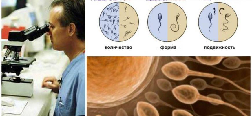 Как быстро улучшить спермограмму в домашних условиях: препараты, продукты и витамины для мужчин, повышающие ее качество