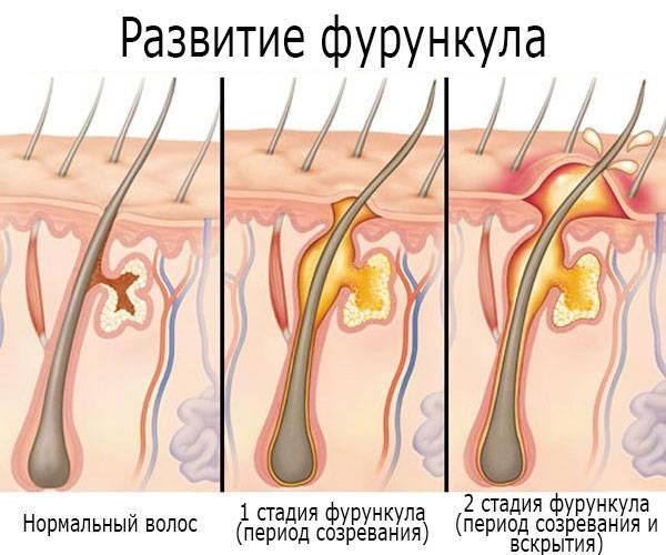 Внутренний фурункул: симптомы и лечение