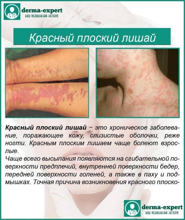 Красный плоский лишай у человека: причины, симптомы (фото), диагностика и лечение