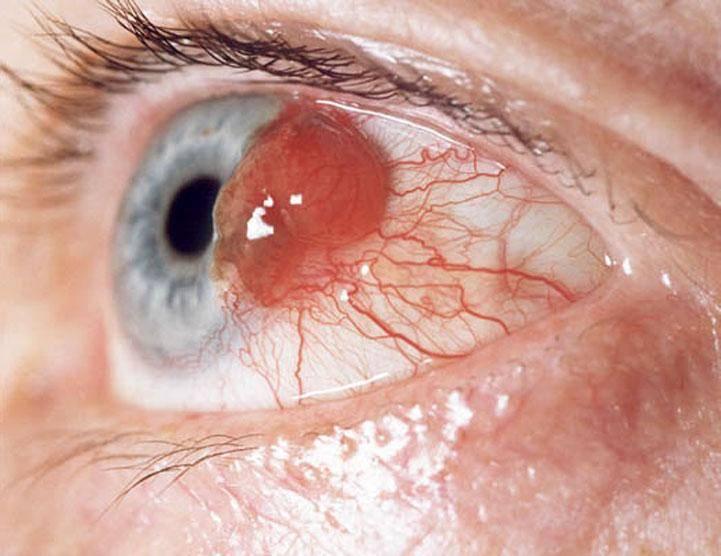 Меланома глаза: локализация, проявления, способы лечения