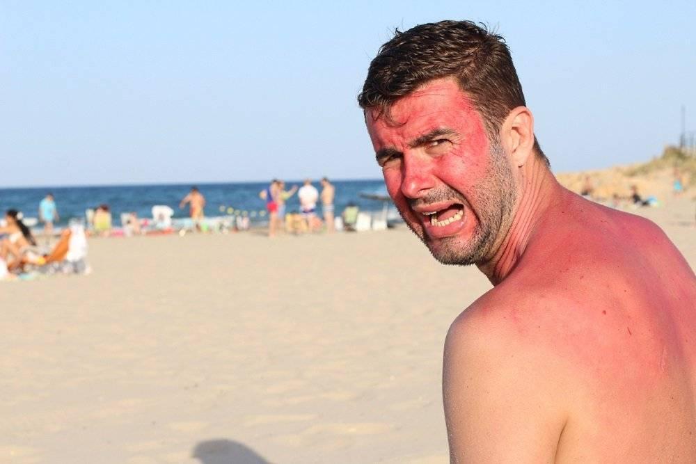 Что делать, если обгорел на солнце: лечение солнечных ожогов