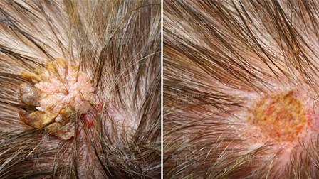 Папилломы на голове: предвестник рака или безобидное новообразование?