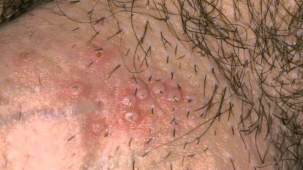 Почему появляется белый налет на головке у мужчин: возможные заболевания и лечение