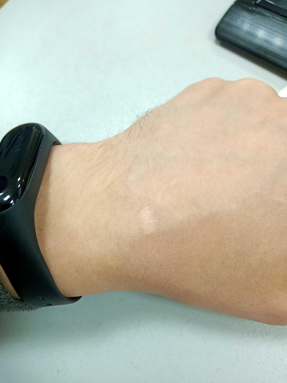 Удаление бородавок на руках и лице: что делать, чтобы кожа была здоровой