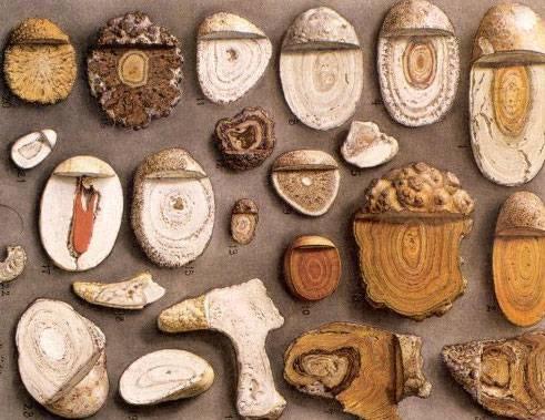 Дробление камней в почках лазером: отзывы и цены