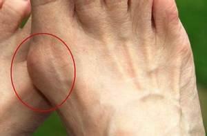 Способы лечения папиллом на ногах (на стопе, пальцах и пятках)