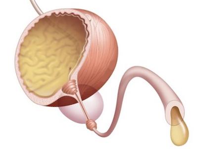 Причины образования слабой струи у мужчин после мочеиспускания