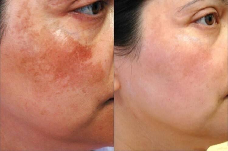 Как быстро убрать пигментные пятна на лице