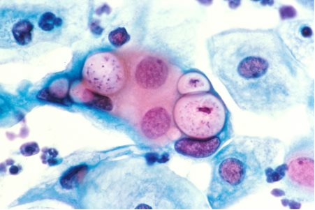 Бактериальный фарингит — причины, симптомы, лечение