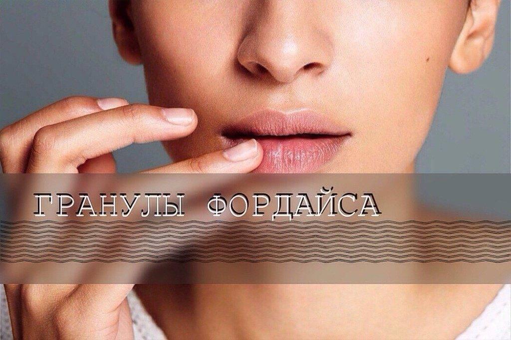 Как выглядят гранулы фордайса на губах и половых органах? следует ли их лечить?