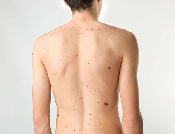 Особенности симптоматики вируса папилломы человека