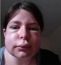 Отёк квинке на лице лечение
