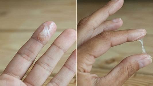 Вагинальные выделения коричневого цвета: причины и лечение