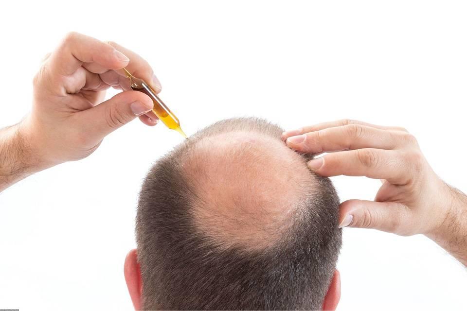 Почему после наркоза выпадают волосы