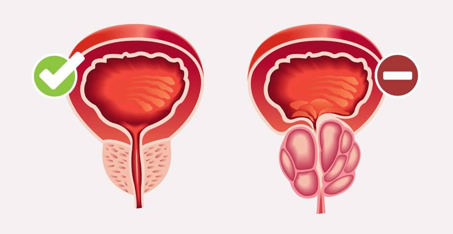 Причины и лечение слабой струи при мочеиспускании у мужчин