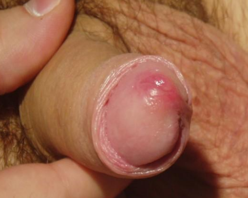 Some reasons lead to penis infection