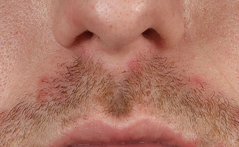 Почему может облазить кожа на головке полового члена?
